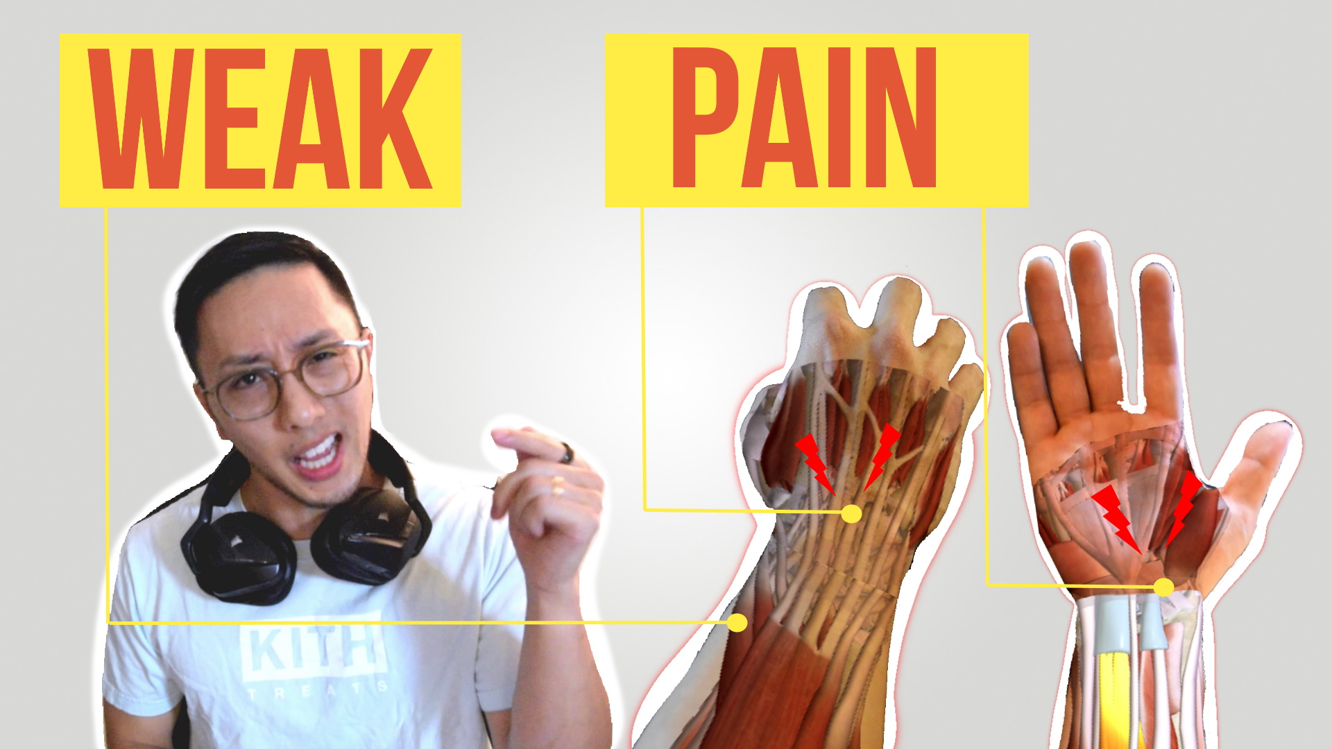Fortnite Makes My Hands Hurt 7 Best Hand Wrist Exercises For Gamers Backed By Science 1hp